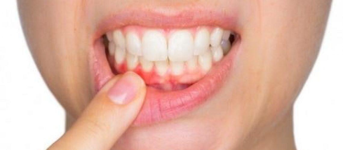 Gurinsky DDS - Bleeding gums-min
