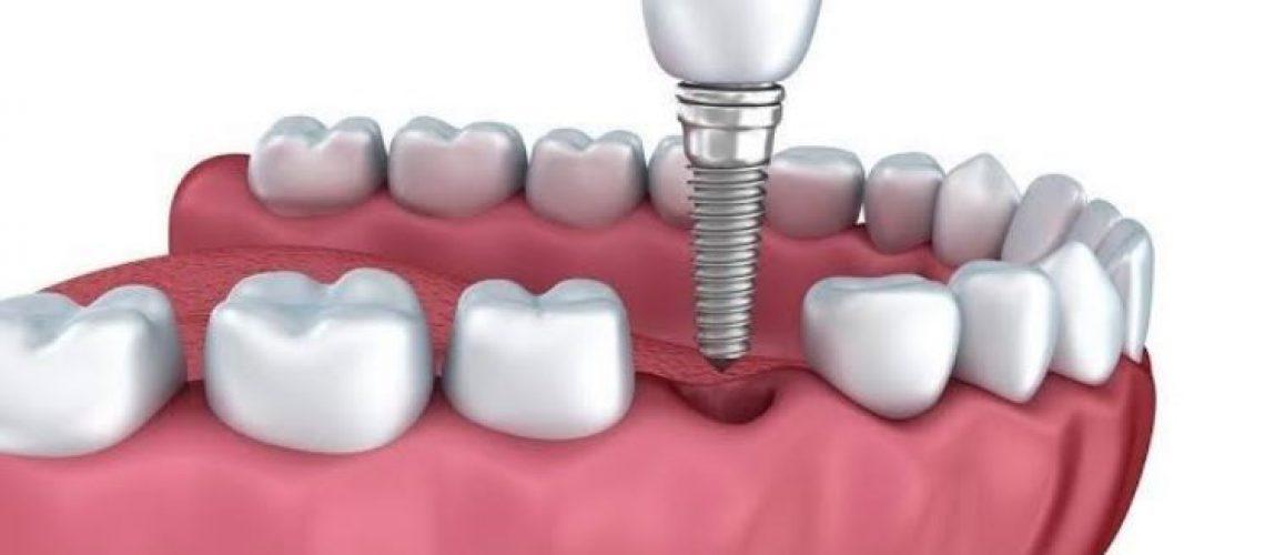 Gurinsky DDS - Dental Implant Illustration